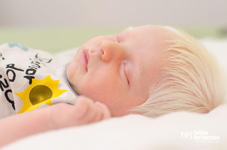 Albinismo: así es la vida de quienes nacen con esta condición