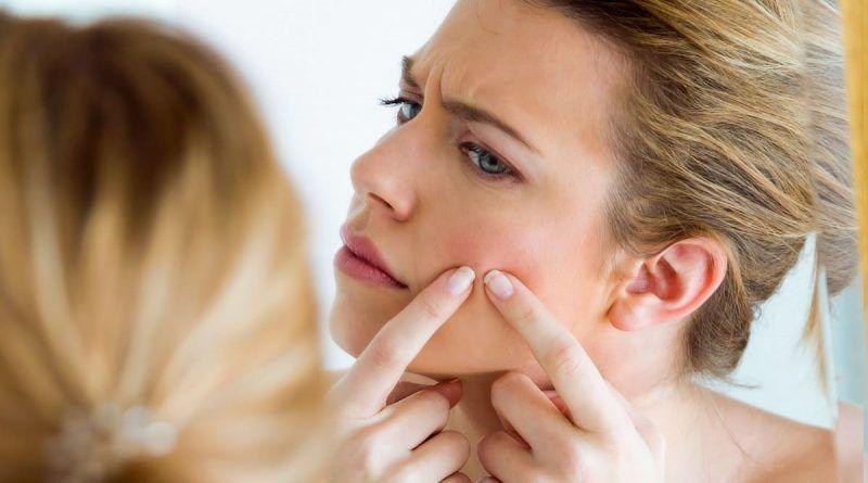alimentos provocan acné