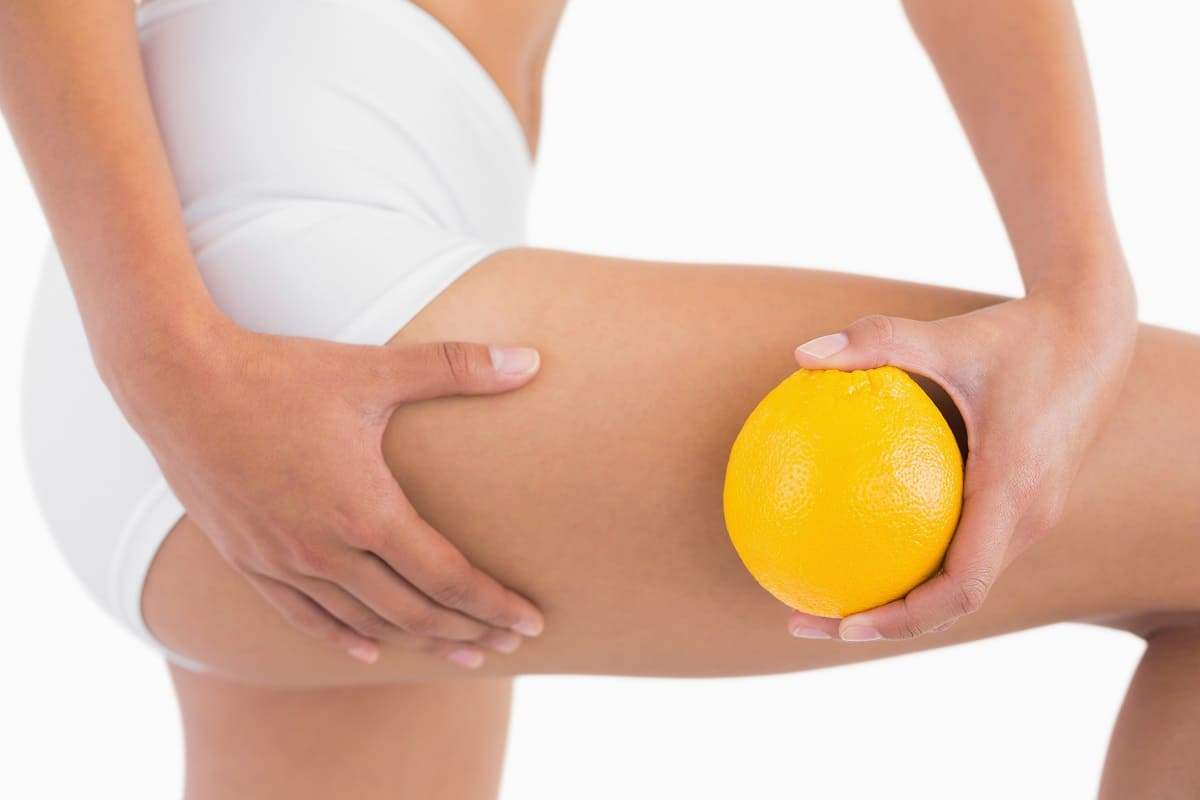 Celulitis: alimentos que te ayudarán a combatirla