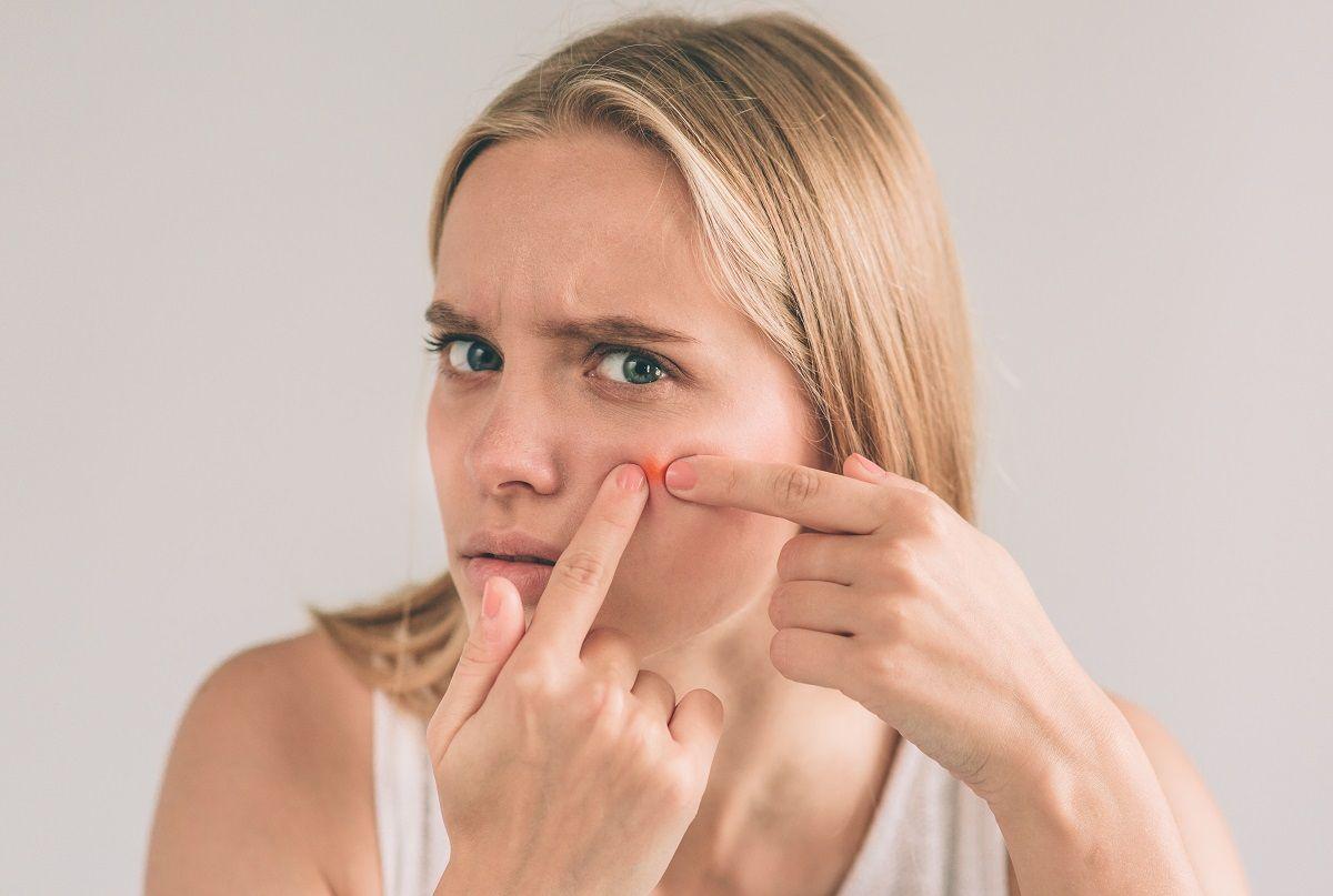 11 estrategias para combatir el acné