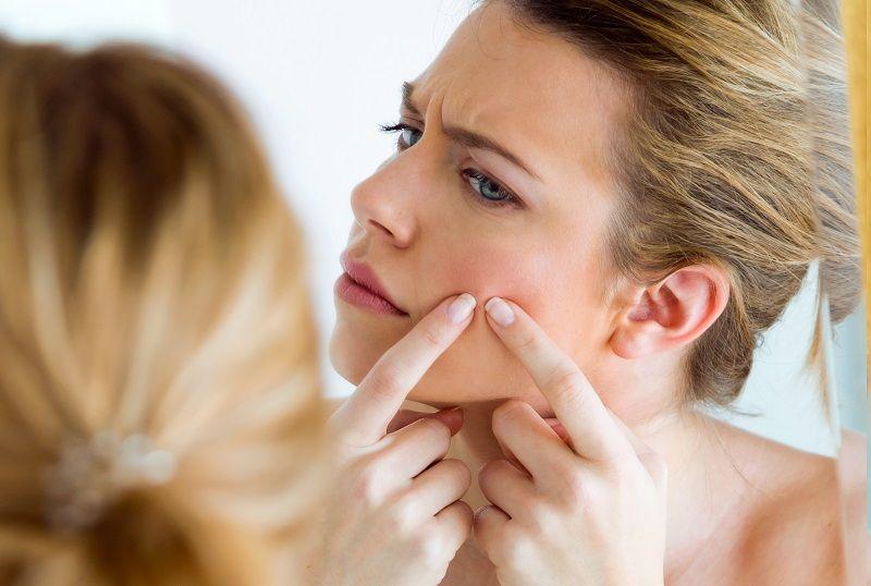 tips para tratar el acne