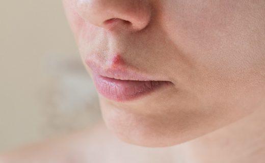Herpes labial: ¿qué es y por qué aparece?