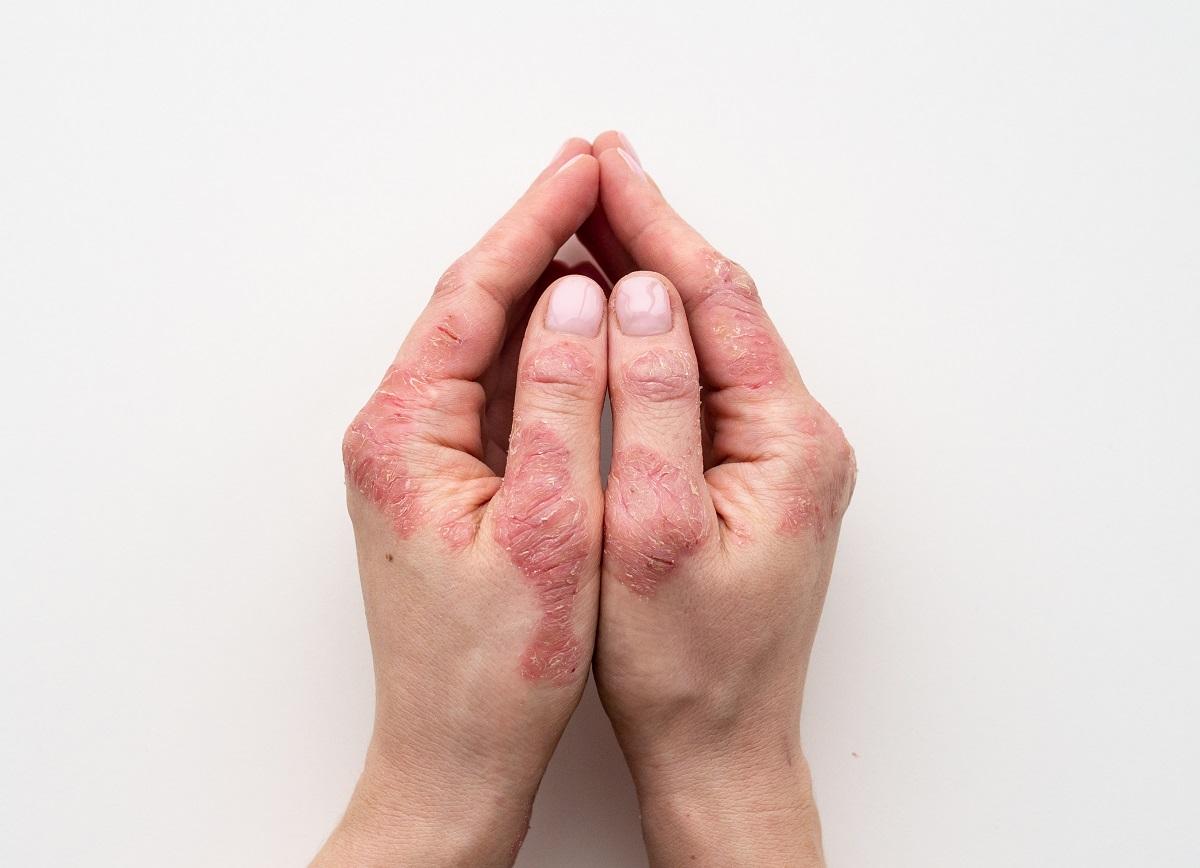 Psoriasis: síntomas, causas y tratamiento